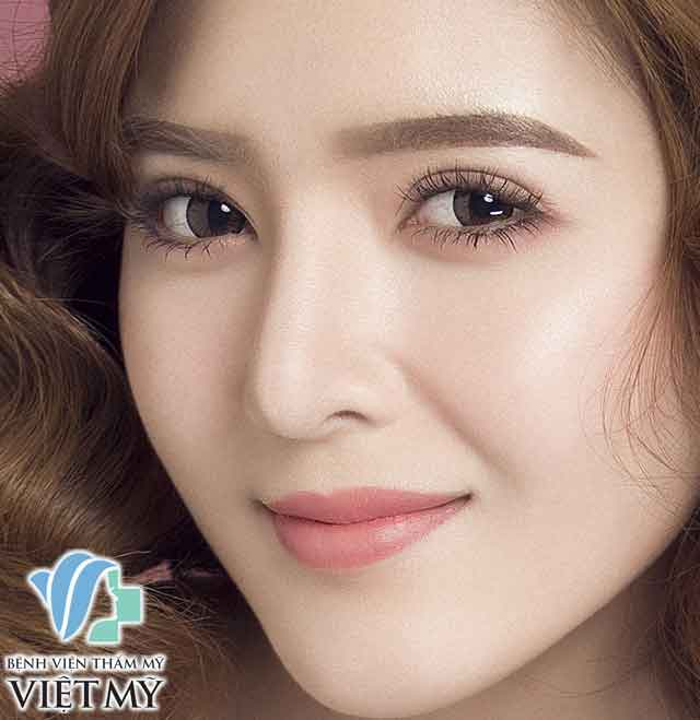 Korean Double Eyelid Surgery