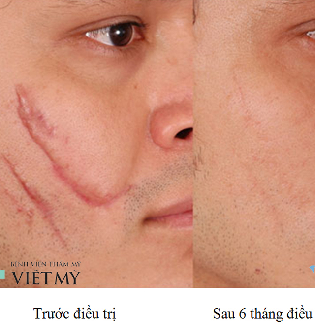 Treatment of acne, bad scarring, prolonged laser