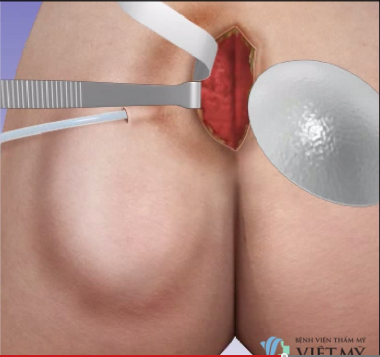 Process of endoscopic buttock augmentation