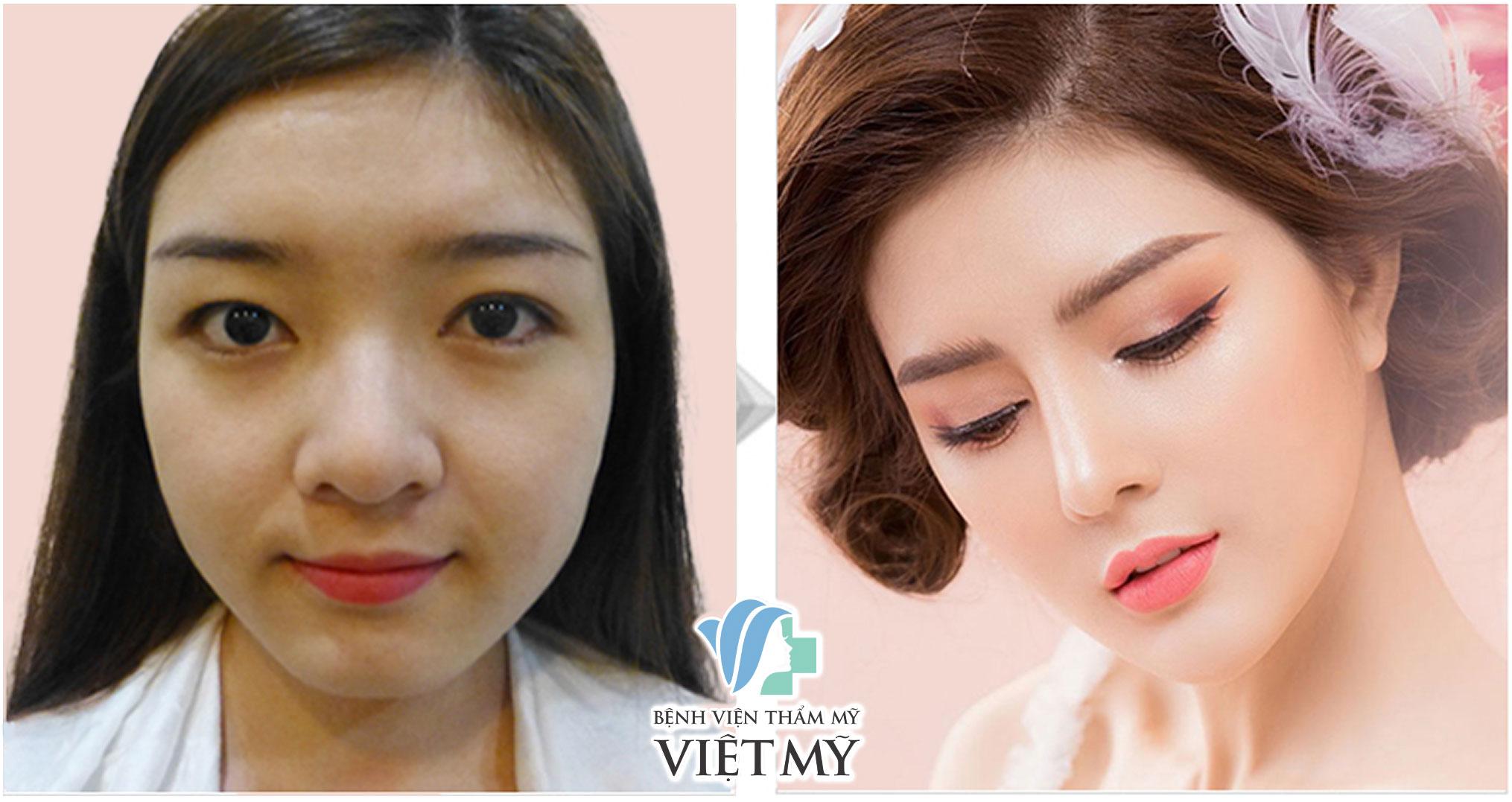 lily luta trước và sau phẩu thuật thẩm mỹ