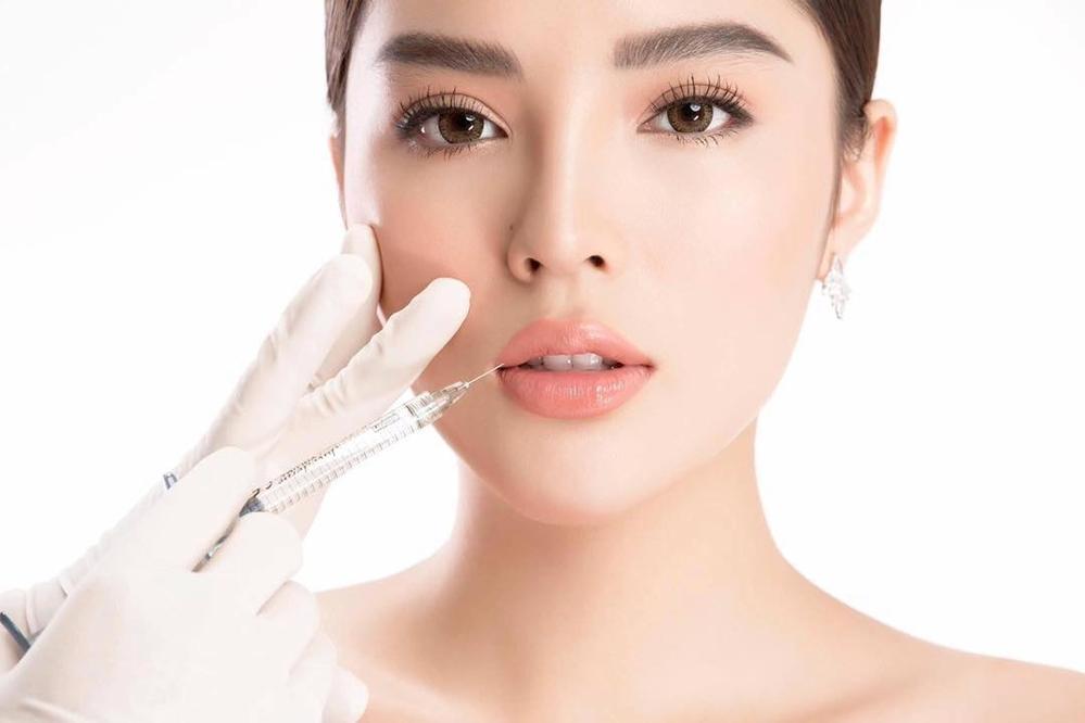 Hết nâng ngực, Hoa hậu Kỳ Duyên công khai đẹp nhờ phẫu thuật thẩm mỹ